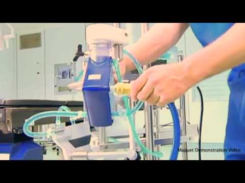 ECMO Therapy: An Advanced Form of Life Support That Saves Lives
