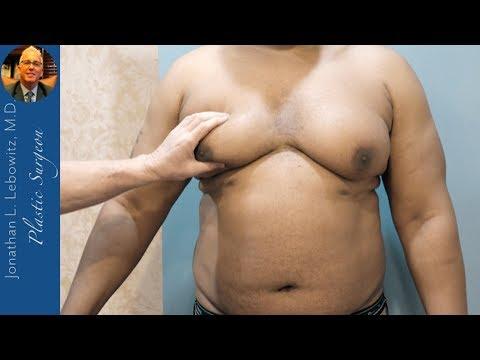 Chicago Male For Pseudo Gynecomastia Surgery, The Long Island VaserLipo Center, NY By Dr. Lebowitz