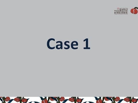 What do you think session Case VOTE