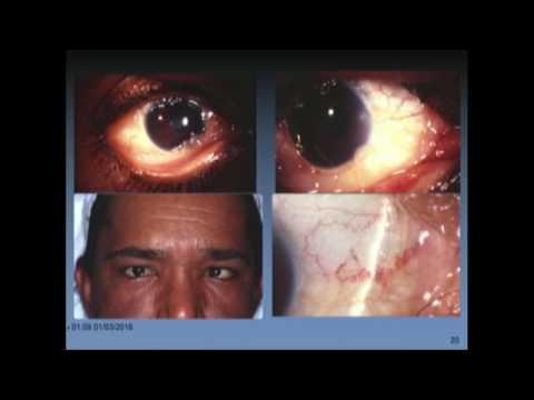 Anterior Segment Tumors