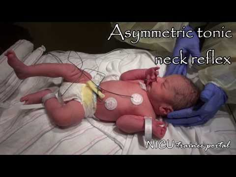 Physical Exam35 weeks gestation late preterm infant