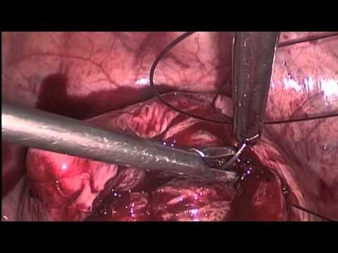 Интерстициально-субмукозный узел миомы. Миомэктомия.