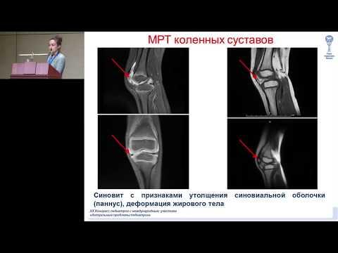 видео: 16.02.2018 - Опыт применения пневмококковой конъюгированной вакцины у детей с ювенильным артритом