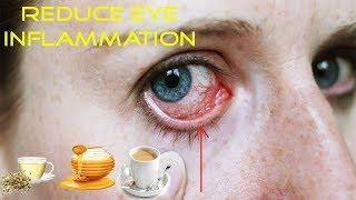 3 Great Tips For Reduce Eye Inflammation