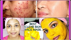 hqdefault - Home Remedies For Acne With Turmeric