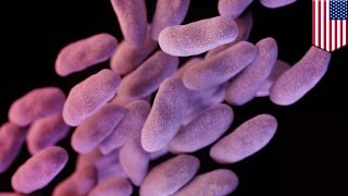 Superbug spreads: Antibiotic resistant bacteria infected 4 patients at UCLA Hospital