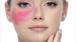 hqdefault - Best Skin Care Products For Rosacea And Acne