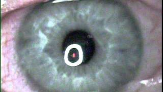 My PRK Wavefront Lasik eye surgery done by Image Plus