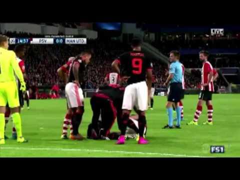 Luke Shaw Horror Injury vs PSV Broken Leg