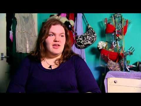 Ожирение - причины, симптомы, диагностика и лечение
