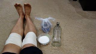 Болят колени что делать? Ничего не помогает? Боль в коленном суставе? Кедровая настойка польза