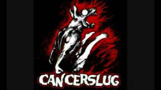 Watch Cancerslug Destruction video