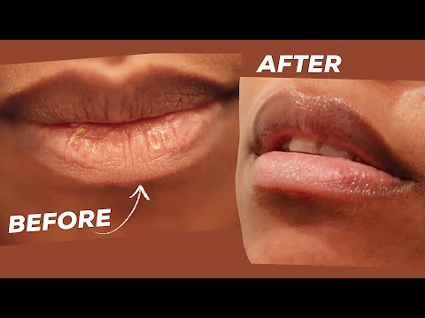 DRY, CHAPPED, PEELING LIPS REMEDY IN MINUTES! This Hack is a Game Changer!