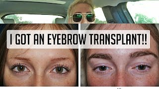 I got an EYEBROW TRANSPLANT!!! Was it painful?? Watch process!!