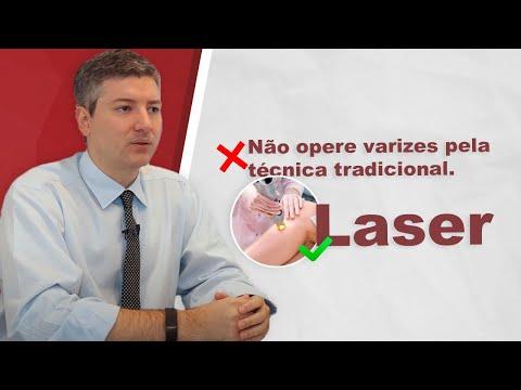 Cirurgia de varizes: Laser? Tradicional? O que fazer?
