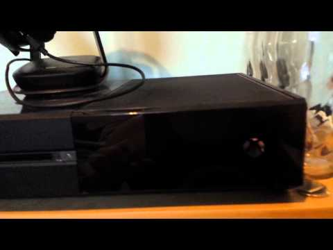 xbox-one-black-screen-of-death-fix!!-(how-to/tutorial)