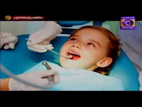 DENTAL HEALTH IN CHILDREN - Samoohyapadam