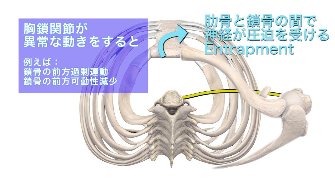 肋鎖癥候群 胸鎖関節による障害 - YouTube