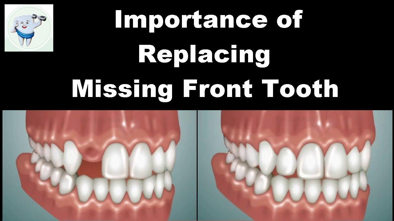 Dental Bridge Front Teeth | Fixed Teeth