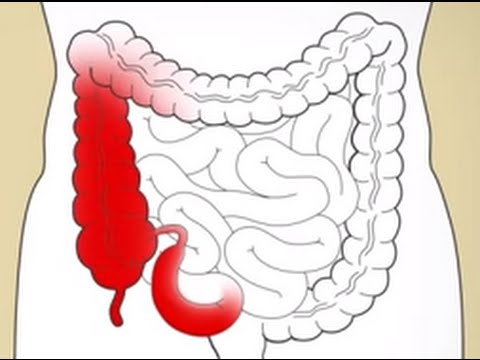 Crohns Disease & Prebiotics
