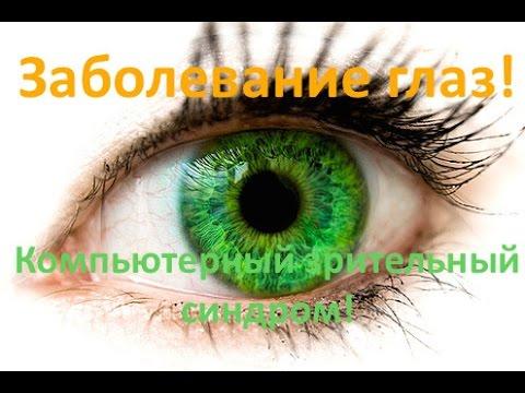 глаз профилактика