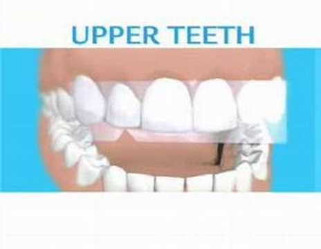 Listerene white strips
