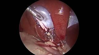 Dog Lap-Cholecystectomy  3,4 kg/Лапароскопическая холецистэктомия, собака 3,4 кг