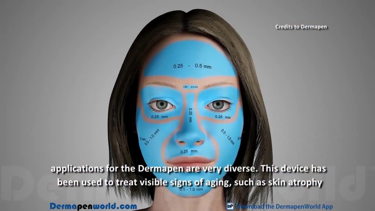 Astuce pour enlever les cicatrices de brulure peau - Dermaroller visage avis ...