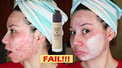 hqdefault - Burt's Bees And Acne
