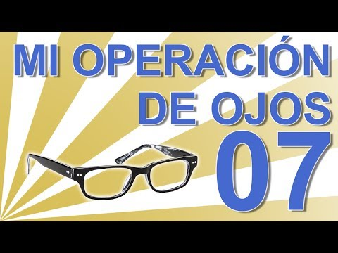 Cap 07: Experiencia personal operación ojos con lentes intraoculares ICL (Un año desde la operación)