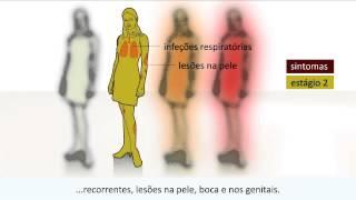 Aids - O que é Aids / HIV?