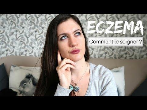 guérir eczema