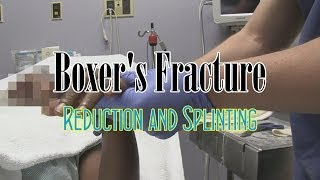 Boxer's Fracture Reduction And Splinting