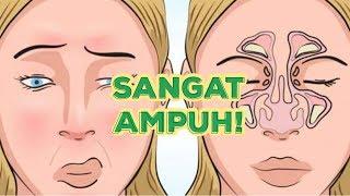 Tips Mengatasi Hidung Tersumbat Dengan Cara Ampuh Ini !