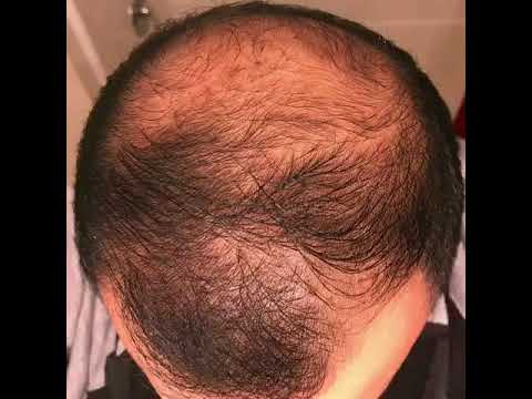 9 months usingminoxidil - Rogaine 5% Before & After results