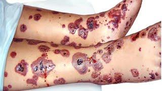 Ibu lumpuh setelah makan nacho keju yang terkontaminasi virus Botulisme - Tomonews.