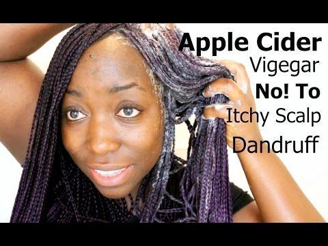 Box Braids Wash Day Apple Cider Vinegar Rinse lift Dirt Buildups Natural Hair Dandruff Itchy Scalp