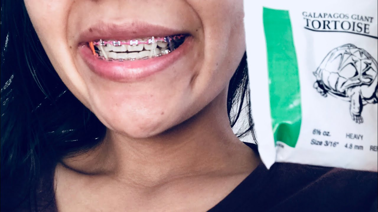how to make fake braces out of rubber bands