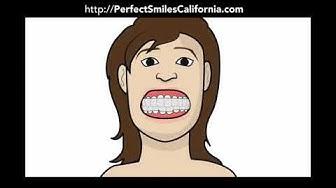 Affordable Teeth Whitening in Chula Vista CA