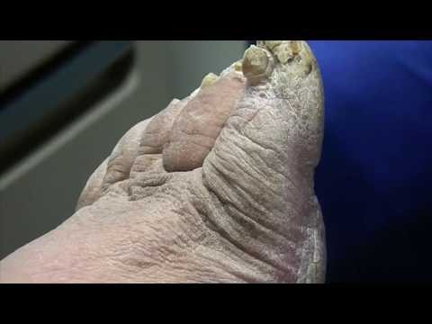 Very Thick Fungal Nail on Big Toe With Callus