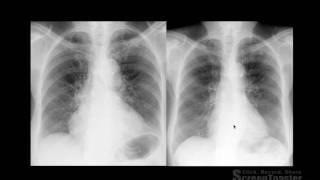 thorax semiologia radiolgica do trax parte 1