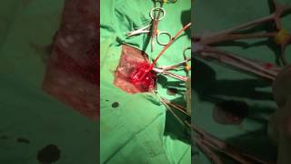 Surgical removal of heartworms in a dog suffering from end stage heartworm disease (caval syndrome).