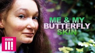 Me & My Butterfly Skin | Living Differently