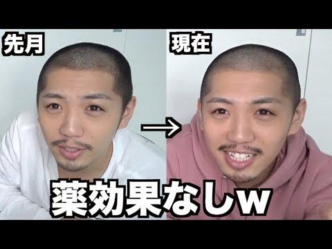 【ハゲ日記】AGA薄毛治療3ヶ月目【オオサカ堂編】