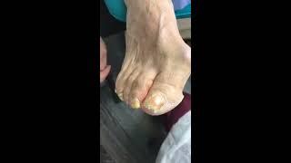 Медицинский педикюр при грибке ногтей Москва