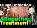 Fungal infection Allopathic Treatment In Hindi || Gyanear