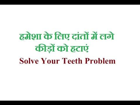 हमेशा के लिए दांतों मैं लगे कीड़े को हटाएं  Solve Your Teeth Problem