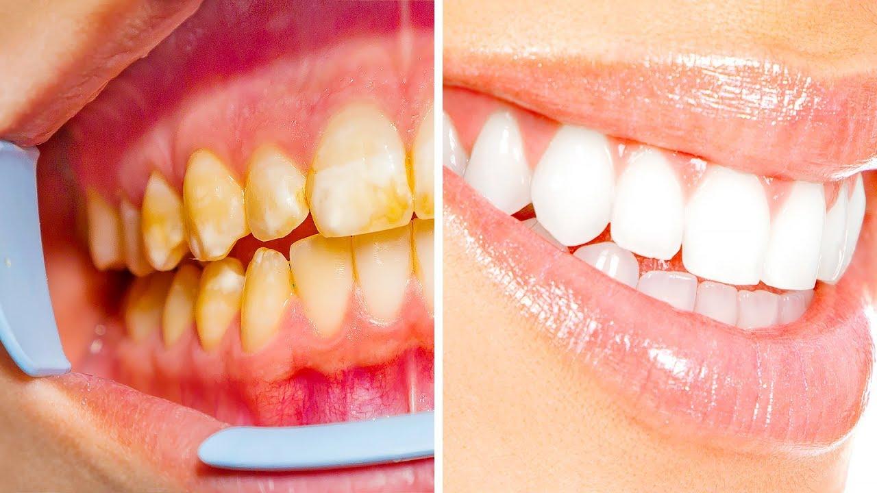 عشرة أسرار بسيطة لابتسامة صحية