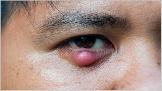 How To Get Rid Of A Stye Overnight - Home Remedies To Cure Stye In Eye.
