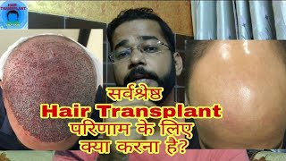Best Advice for Hair Regrowth before Hair Transplant    PRP before Hair Transplant